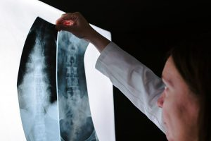 On Site Digital X-Rays Spine Pelvis X-Ray Urgent Care Chiropractic